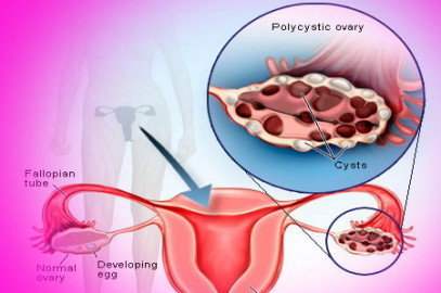 30 ovaries cysts  gone